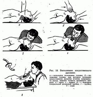 Как сделать искусственное дыхание человеку